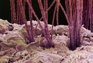 Dog hair under microscope